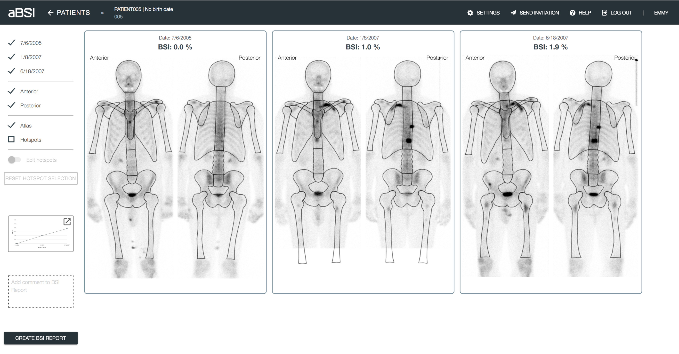 Quality Check  A model of the skeleton divided into 31 regions is automatically and accurately fitted to each scan. The model is displayed for quality control.