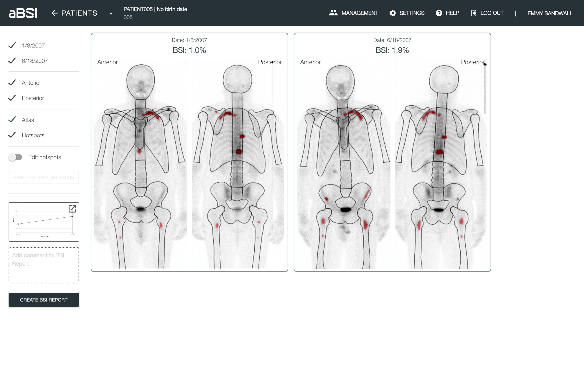 Pre-selected Hotspots  aBSI automatically calculates the BSI values that reflects the extent of skeletal involvement by tumor in whole body bone scans based on the pre-selected hotspots.