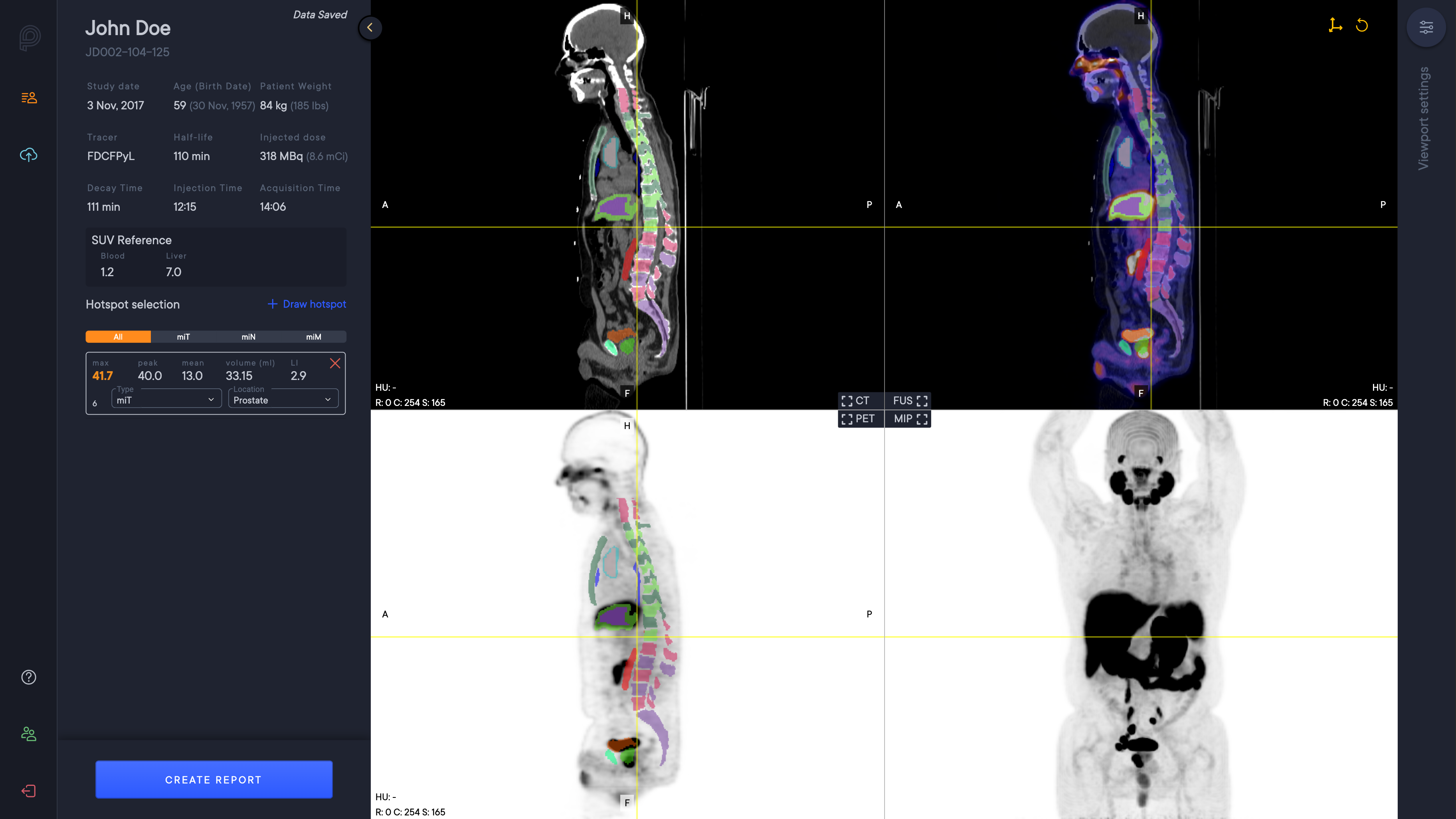 aPROMISE SegmentationThe software automatically analyzes the CT image to segment anatomical regions, including liver and aorta.